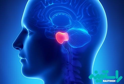 پل مغزی