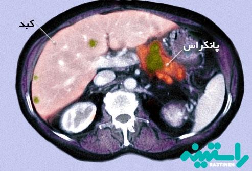 تشخیص سرطان پانکراس