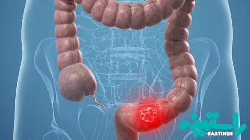 جلوگیری از سرطان روده بزرگ
