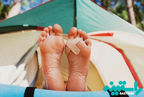 مراقبت از تاول ها و کبودی ها