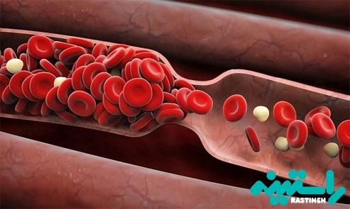 لختههای خون