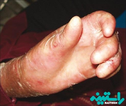 درمان بیماری پروانه ای