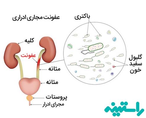 عفونت دستگاه ادراری