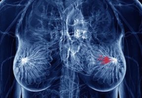 ید و سرطان سینه