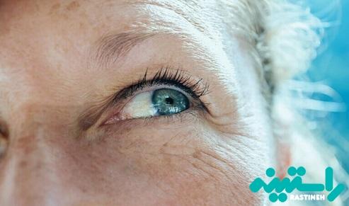 اثرات پرتو های ماورای بنفش UV روی چشمهای شما