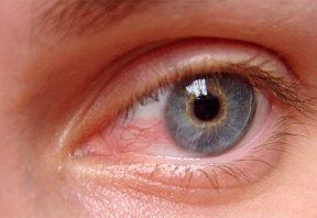 ناخنک چشم