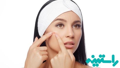 حساسیت های پوستی