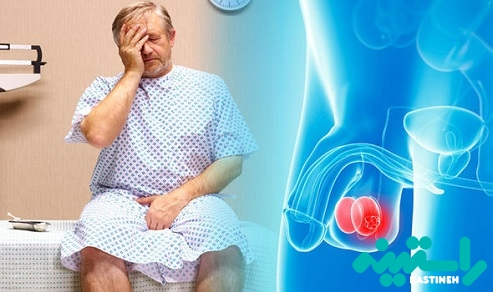 درمان سرطان بیضه