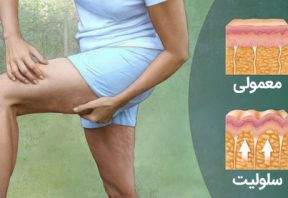 علائم و نشانههای سلولیت