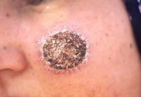 بیماری سالک پوستی