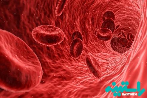 کمبود آنزیم G6PD