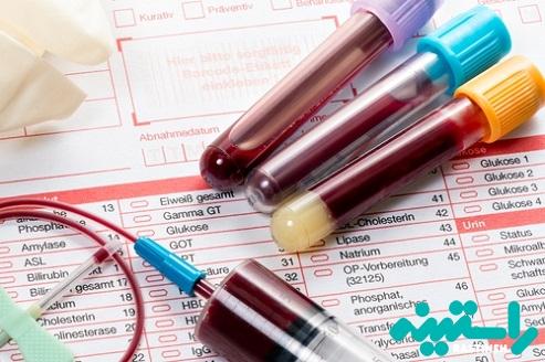 تشخیص کمبود آنزیم G6PD