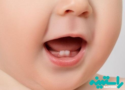 رویش دندان شیرخواران