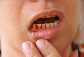 دندان شکسته