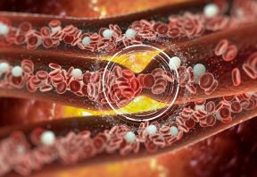 درمان حمله ایسکمیک گذرا
