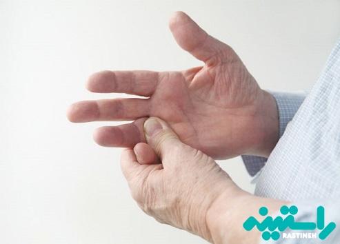 دررفتگی استخوان انگشت دست