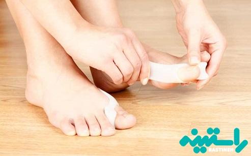 درمان بیرون زدگی استخوان شست پا
