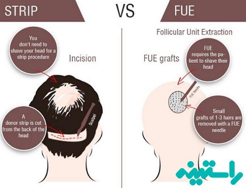 انواع جراحی کاشت مو