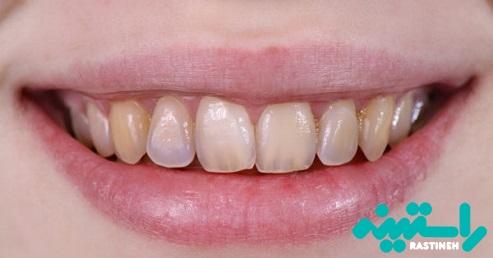 فرسایش مینا دندان