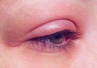 تورم پلک چشم