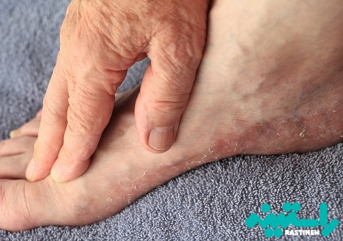 پوسته ریزی پا