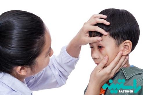 آسیب خفیف به چشم کودک