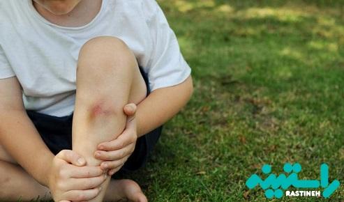 کبودی در کودکان