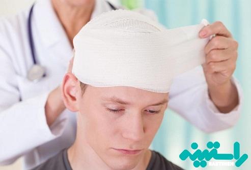 بستن سر با بانداژ بعد از کاشت مو