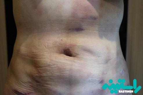 روند بهبودی بعد از عمل لیپوساکشن