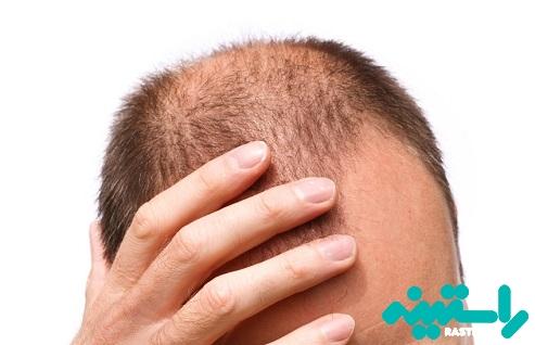 ریزش مو یا طاسی