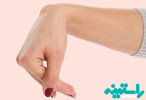 کیست گانگلیون یا کیست مچ دست
