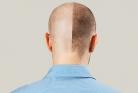 کاشت مو یا طاس ماندن؟