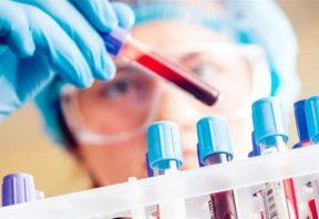 آزمایش خون (CBC)