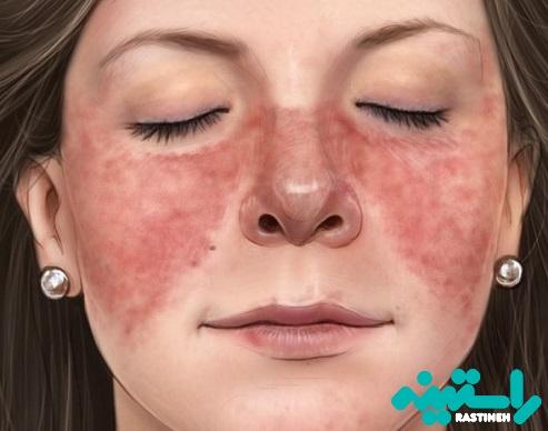 بیماری لوپوس