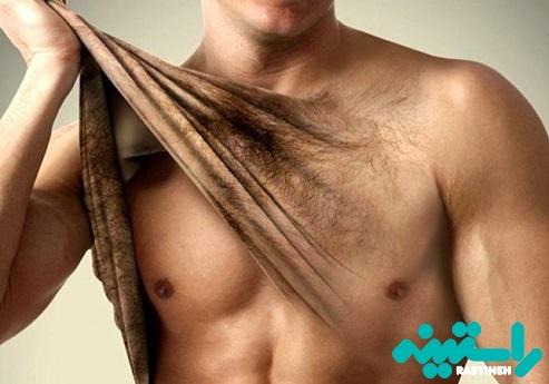 رفع موهای زائد مردان