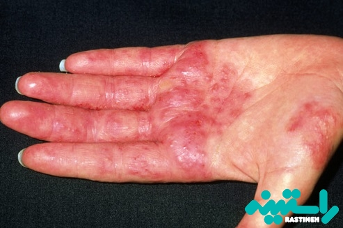 آماس پوست (التهاب پوستی)