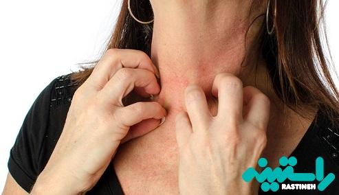 علائم التهاب پوست