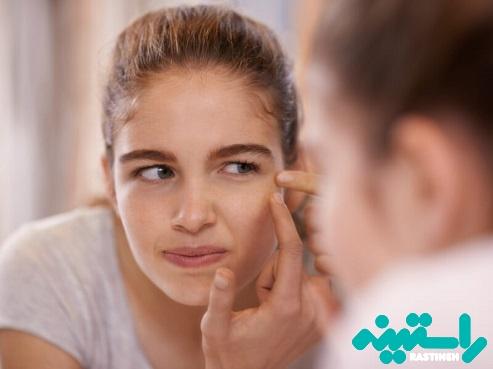 عوامل ایجاد لکههای پوستی