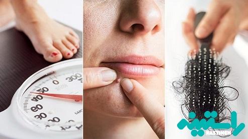 علائم معمول سندرم تخمدان پلیکیستیک