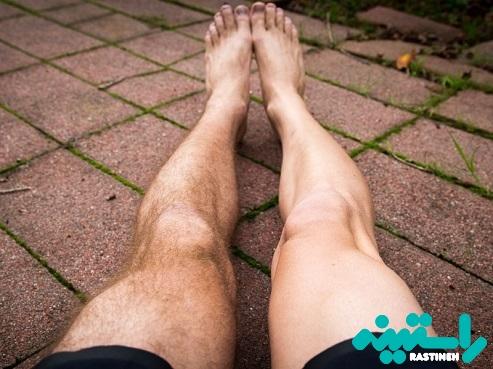 لیزر موهای پا برای آقایان