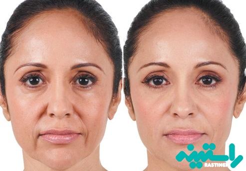 درمان چینهای بینی