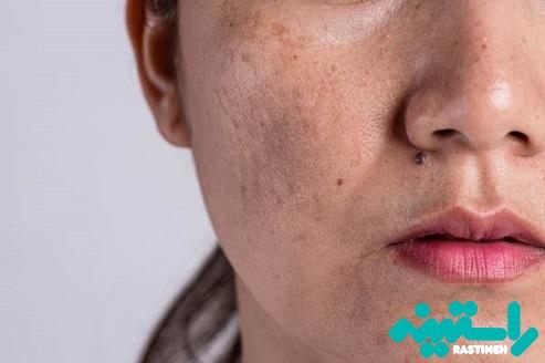 درمان تجمع رنگدانهها ( پیگمانتاسیون )