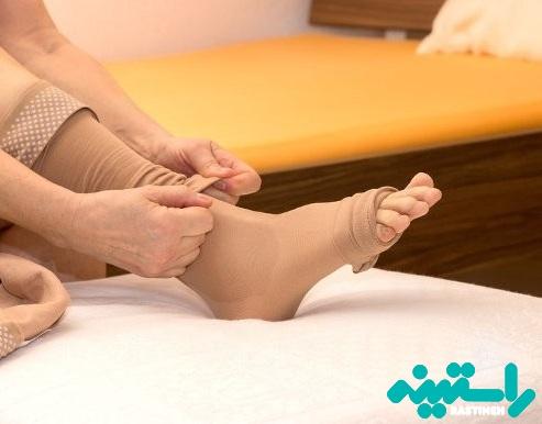 پوشیدن جورابهای بلند مخصوص درمان واریس